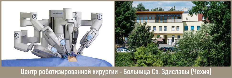 Лечение с применением робота давинчи
