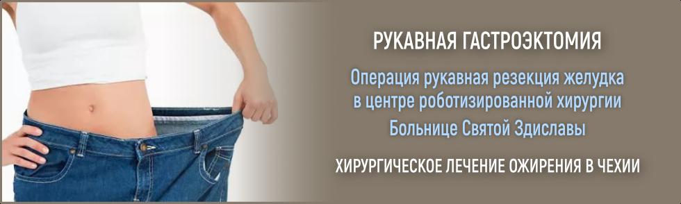 рукавная гастроэктомия, бариатрия в чехии, рукавная резекция желудка, лечение ожирения