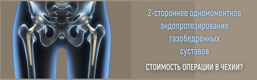 двустороннее эндопротезирование тазобедренных суставов