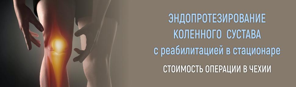 Замена коленного сустава в чехии, эндопротезирование коленного сустава в чехии, эндопротезирование в чехии