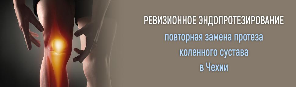 Повторная замена коленного сустава в чехии, ревизионное эндопротезирование коленного сустава в чехии, ревизионное эндопротезирование в чехии