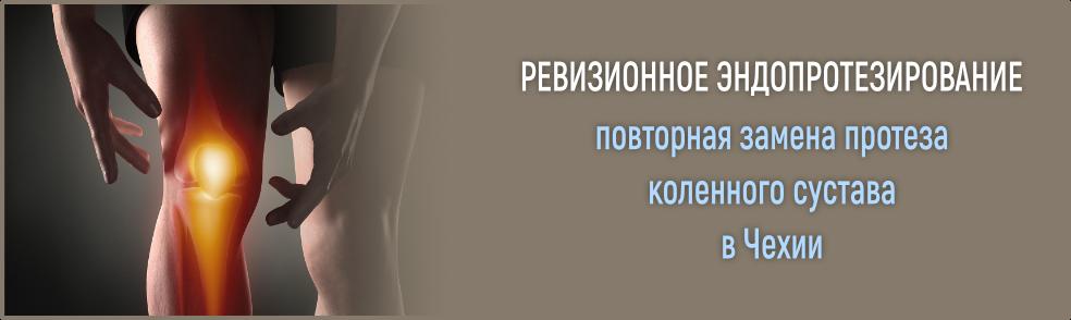 ревизионное эндопротезирование в Чехии