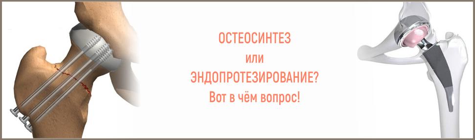 эндопротезирование или остеосинтез после перелома шейки бедра