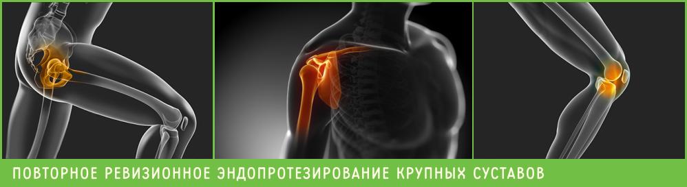 Ревизионное эндопротезирование, Повторная операция по замене суставов